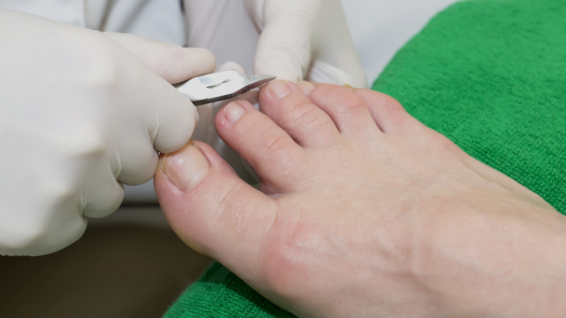 Mobile Foot Specialist North Wales